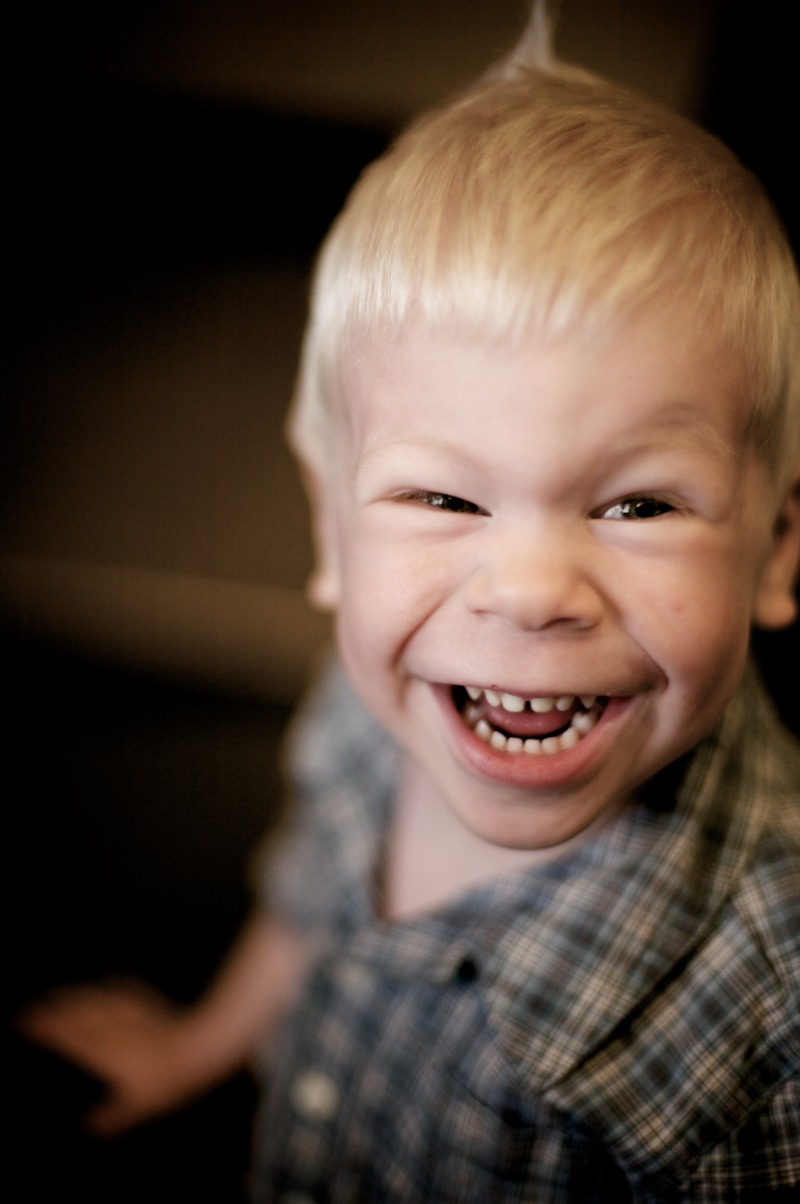 williams syndrome Williams syndrome information including symptoms, diagnosis, misdiagnosis, treatment, causes, patient stories, videos, forums, prevention, and prognosis.