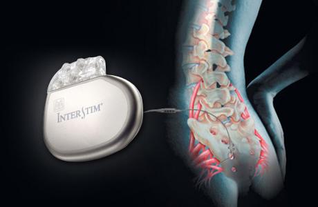 Neuromodulador-sacral