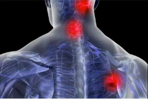 fibromialgia (4)