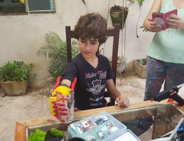 A imagem está no formato retangular na horizontal. Nela contém um garoto sentado em uma cadeira no quintal de sua casa, segurando um copo com a sua prótese na mão direita. Fim da descrição.